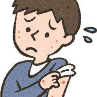 蕁麻疹の薬が効かなくなったので変更してみた。種類別薬剤の強さは?
